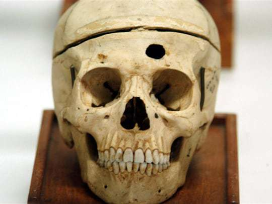A Skull at The Forensic Museum in Bangkok