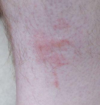 Bites from bedbugs on leg