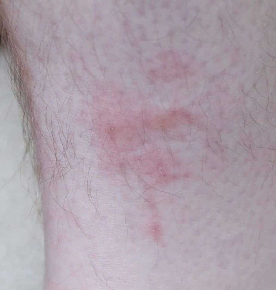 Bites from bedbugs on leg
